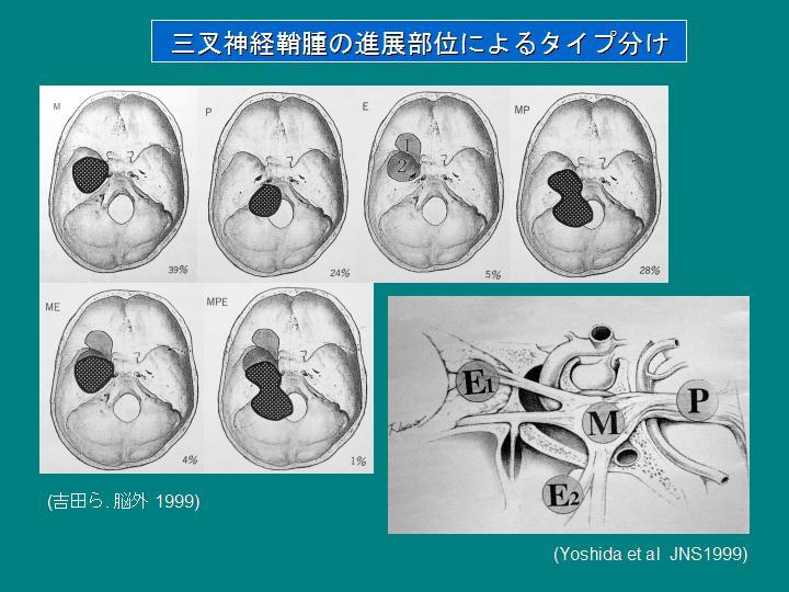 三叉 神経痛 症状