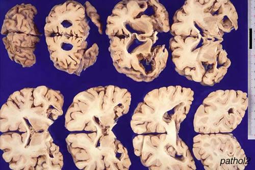 nervous system nirvana: diseases, Skeleton