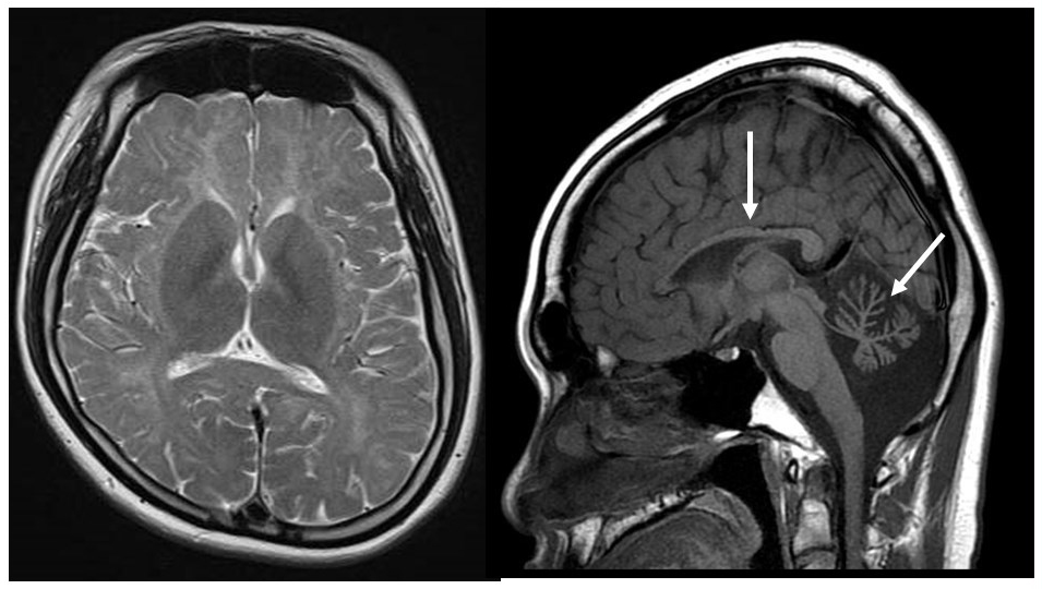 Diagnostic imaging of congenital cerebral hypomyelination
