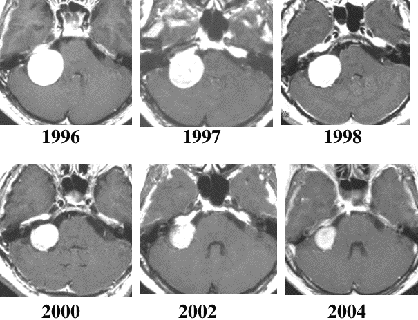 聴神経腫瘍(前庭神経鞘腫) | 脳外科医 澤村豊のホームページ