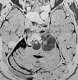 villonoduläre synovialitis behandlung