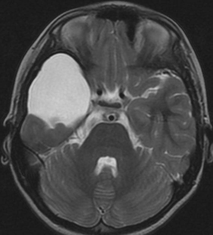 くも膜のう胞(嚢胞)arachnoid cyst   脳外科医 澤村豊のホームページ