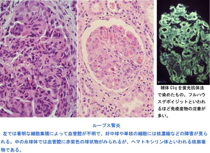 糸球体腎炎4