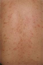 日本臨床皮膚科医会,ひふの病気