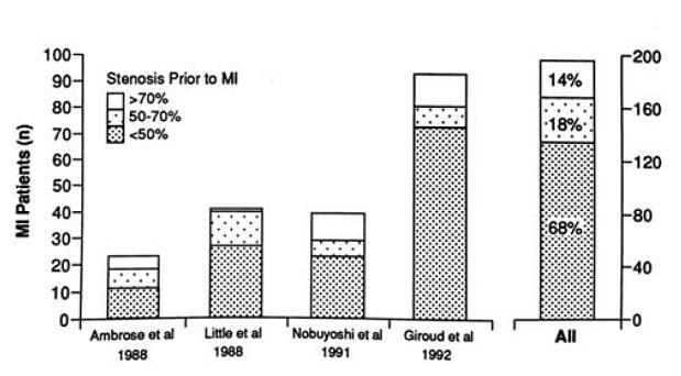図16:急性心筋梗塞発症前の冠動脈病変狭窄度