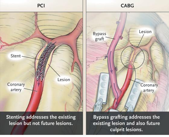 """図18:糖PCIが責任病変を治療するのに対しCABGが責任病変のみならず""""将来""""の新規病変を含んでバイパスする。このことが多枝病変患者では少なくとも中期成績はCABGが優勢であることに寄与していると考えられる。"""