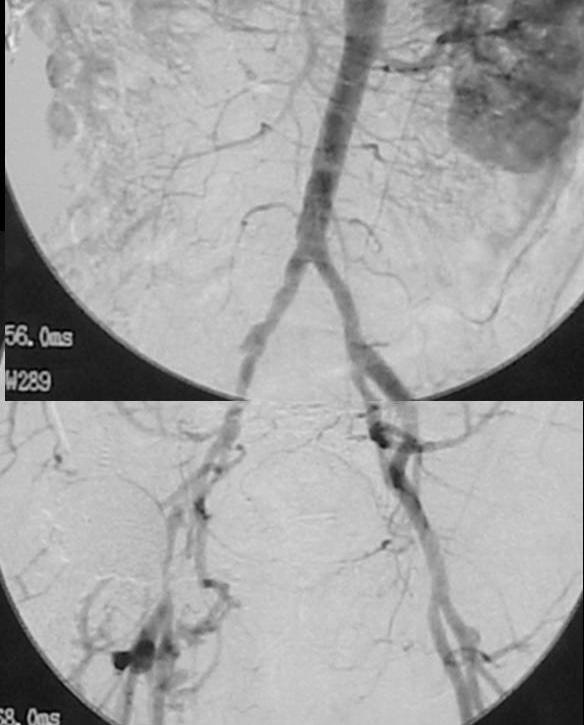 図1:術前血管造影