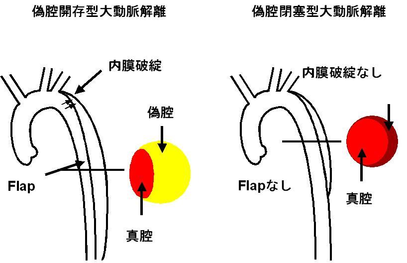 図1:偽腔開存型大動脈解離と偽腔閉塞型大動脈解離の違い