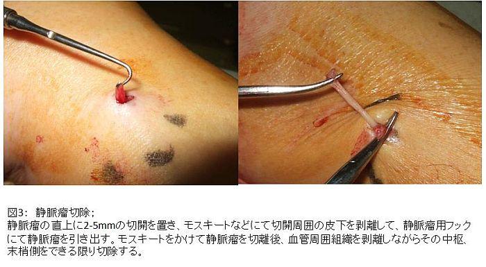 図3:静脈瘤切除