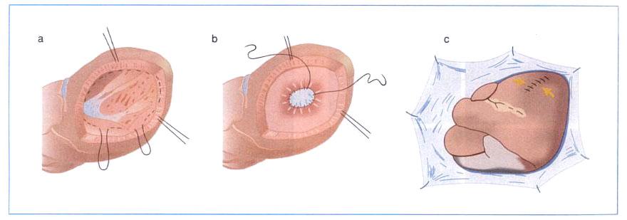 図1.Dor手術(Endo Ventricular Circular Patch Plasty:EVCPP)