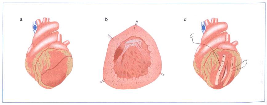 図2.Batista手術(Partial Left Ventriculectomy; PLV)