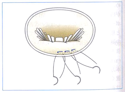 図4.左室拡大に伴っておこる僧帽弁閉鎖不全に対する僧帽弁形成術