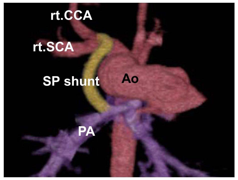 図2: 胸骨正中切開アプローチによる腕頭動脈-肺動脈シャント