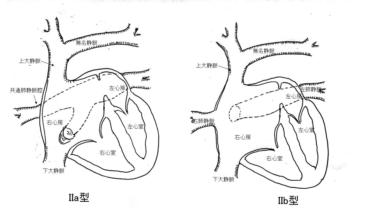 図3:下心臓型、混合型