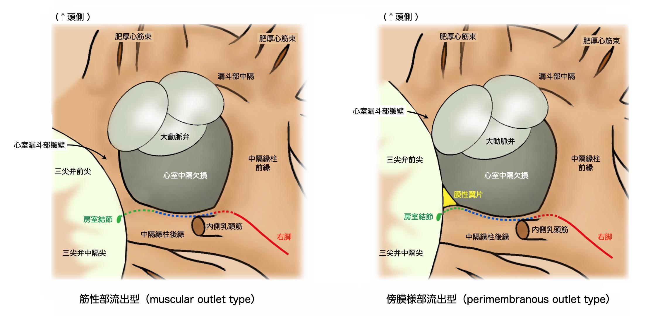 傍膜様部流出型(perimembranous outlet type)、筋性部流出型(muscular outlet type)