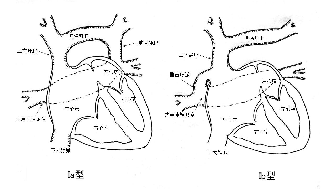 図1:上心臓型