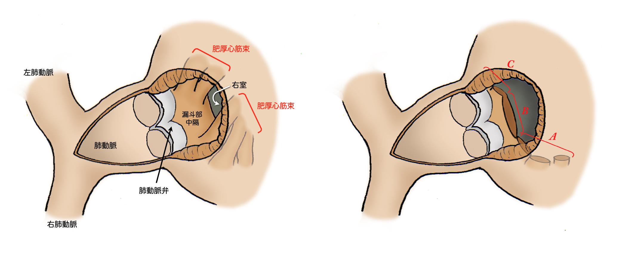 心臓血管外科_ファロー四徴症_図4