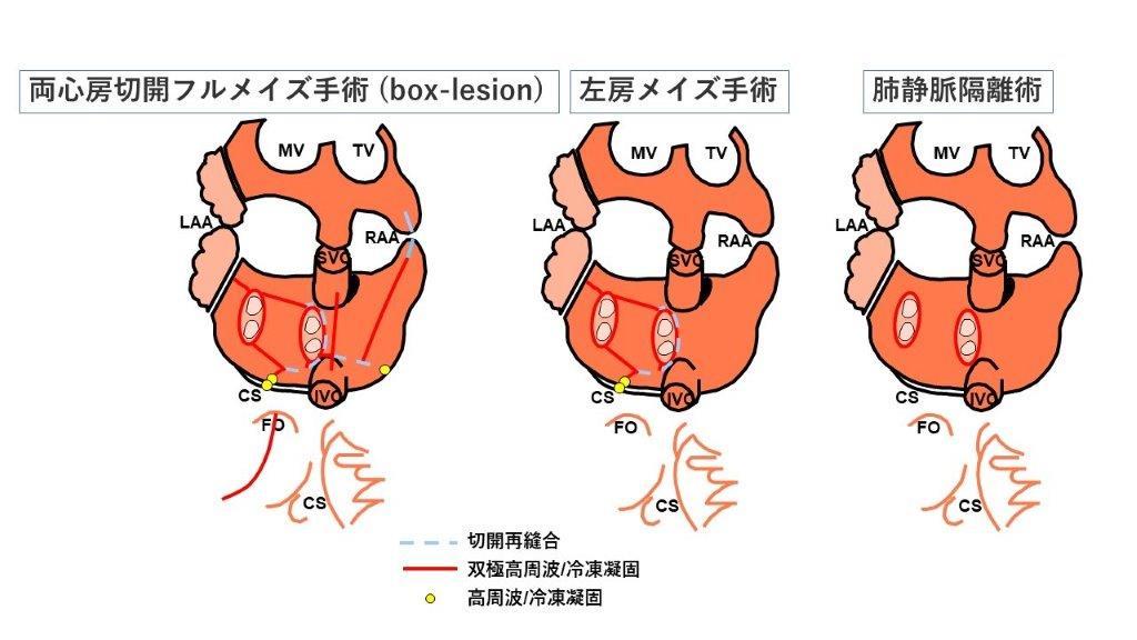 図1 各心房細動手術シェーマ