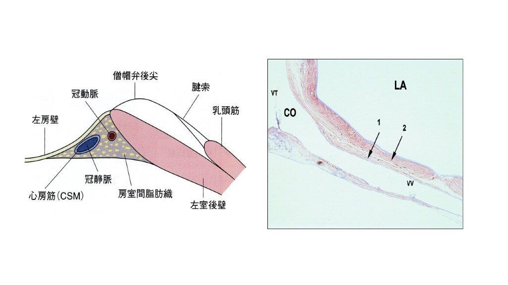 図3 僧帽弁輪部の解剖