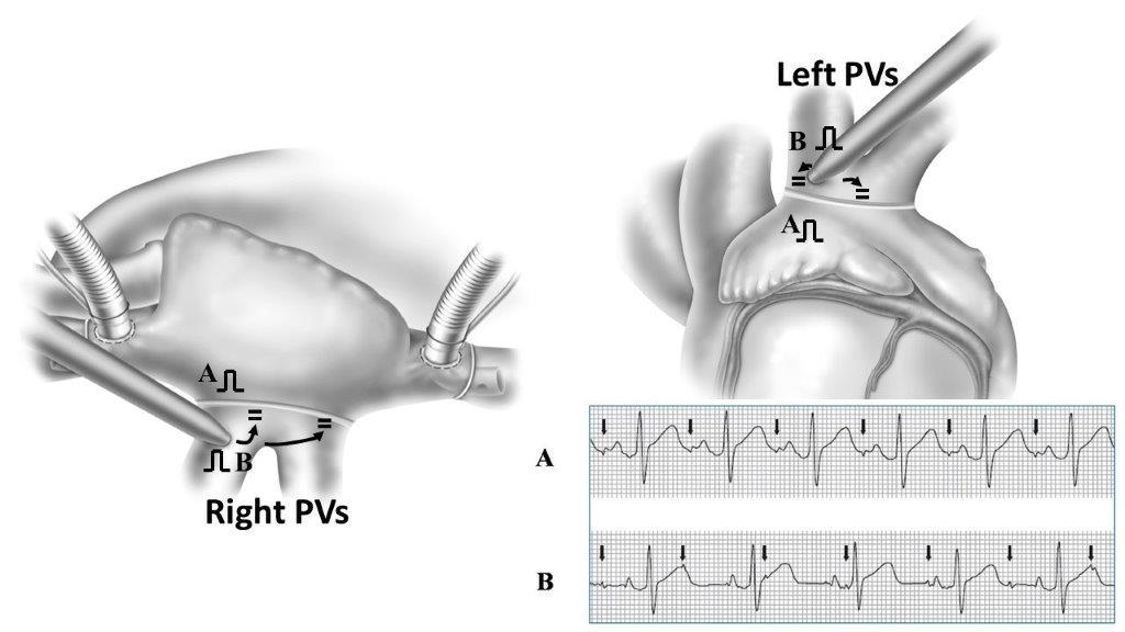 図2 肺静脈ペーシングによる肺静脈隔離の確認