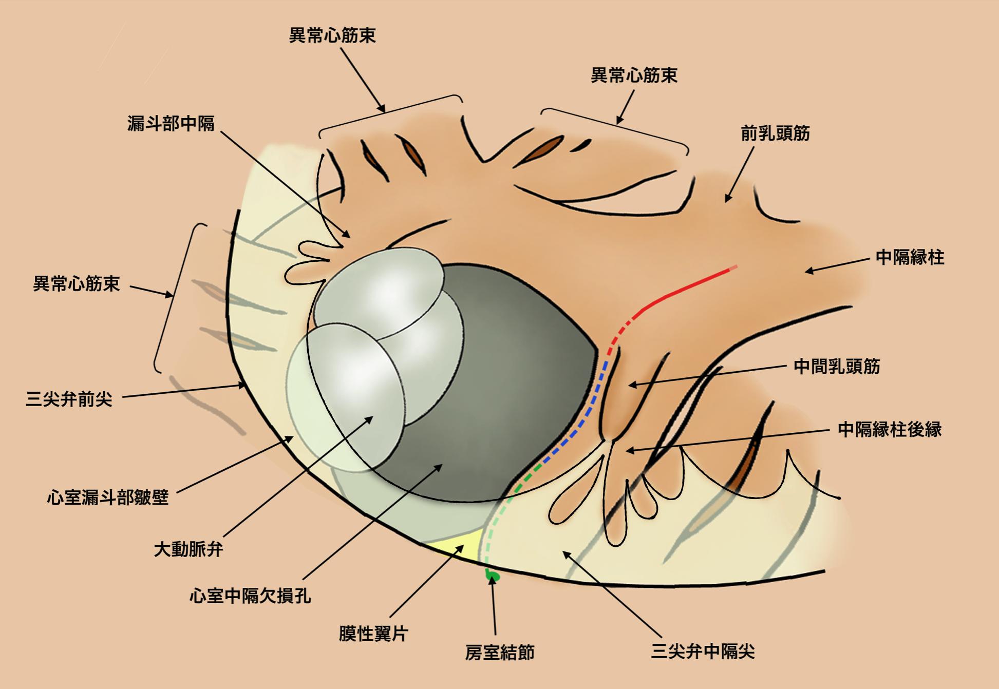 図2 VSD周辺の解剖