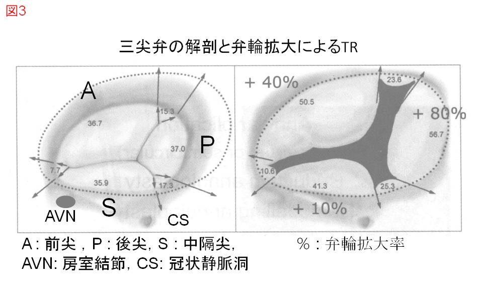 三尖弁の解剖(左)と弁輪拡大によるTR(右)A : 前尖 ,P : 後尖,S : 中隔尖,AVN: 房室結節,CS: 冠状静脈洞,% : 弁輪拡大率