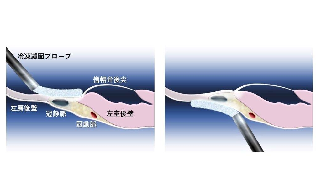 図4 冠静脈を心内膜側と心外膜側の両側から冷凍凝固