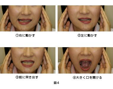 治療 痛 法 関節 症 額